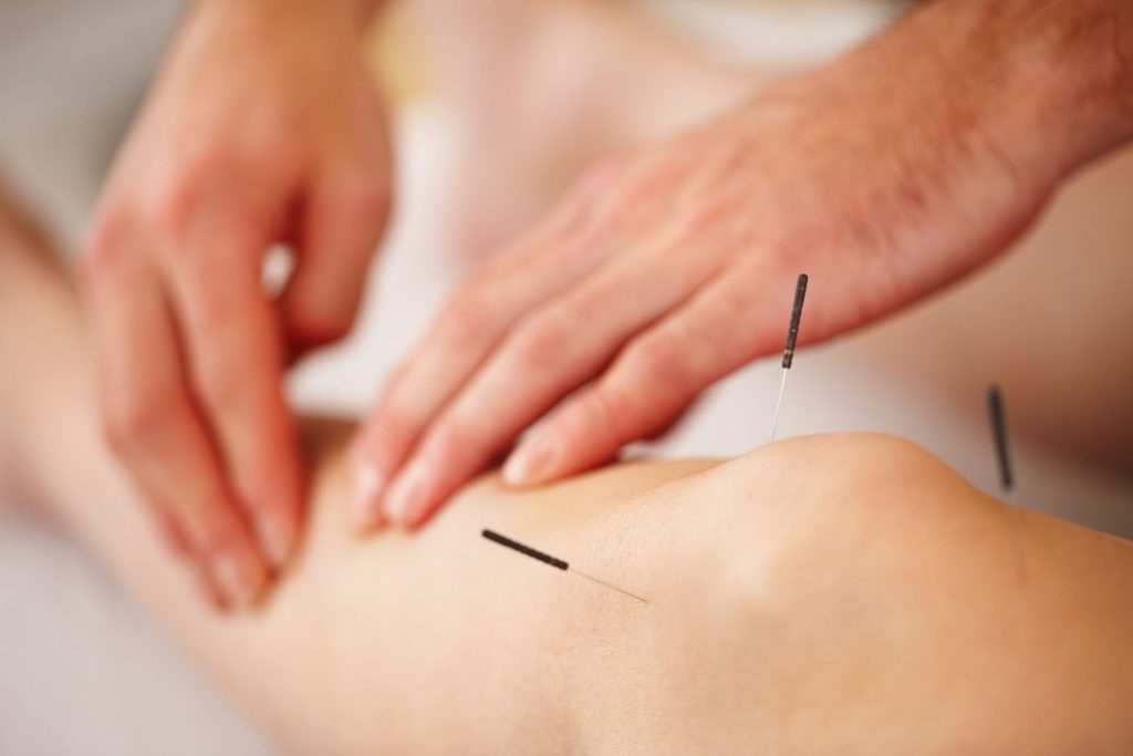 The Benefits of Acupuncture Therapy